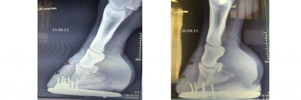 Röntgen vier Wochen Abstand